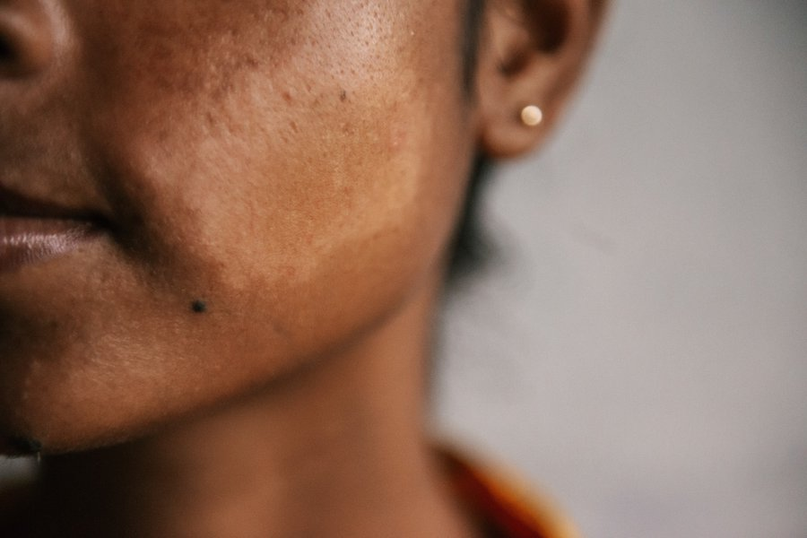 A skin patch on the cheek of a woman's face
