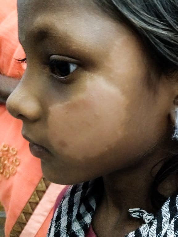 A leprosy skin patch on a young girl's face