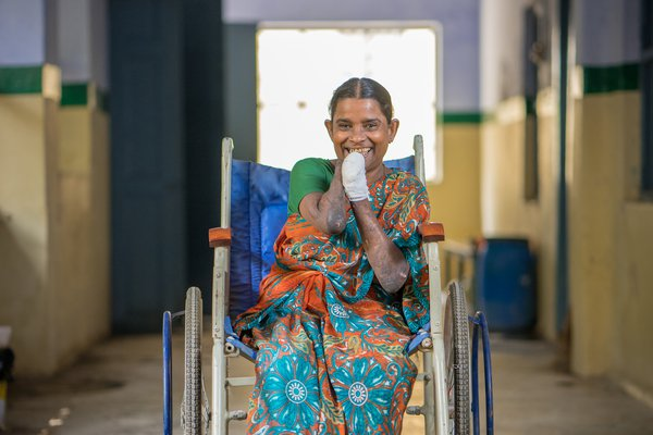 Nagammal smiles from her wheelchair in one of our hospitals
