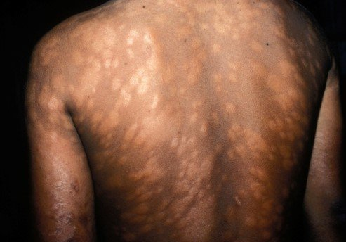 Leprosy skin patches